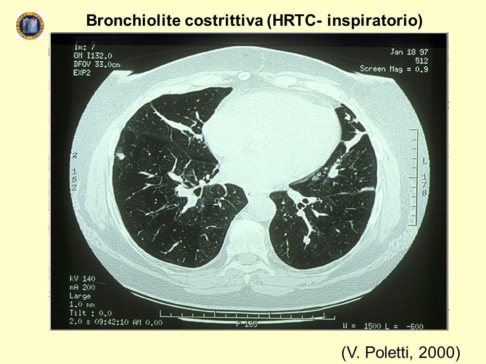 (V. Poletti, 2000) Bronchiolite costrittiva (HRTC- inspiratorio)