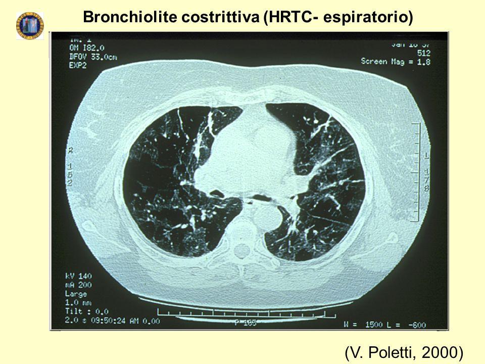 (V. Poletti, 2000) Bronchiolite costrittiva (HRTC- espiratorio)