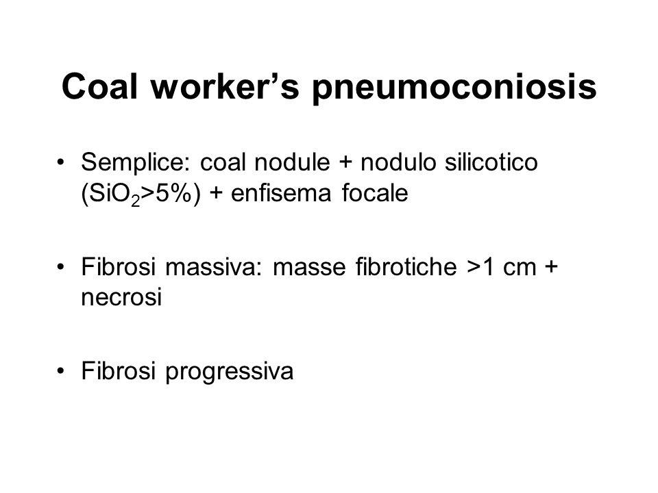 Coal workers pneumoconiosis Semplice: coal nodule + nodulo silicotico (SiO 2 >5%) + enfisema focale Fibrosi massiva: masse fibrotiche >1 cm + necrosi Fibrosi progressiva