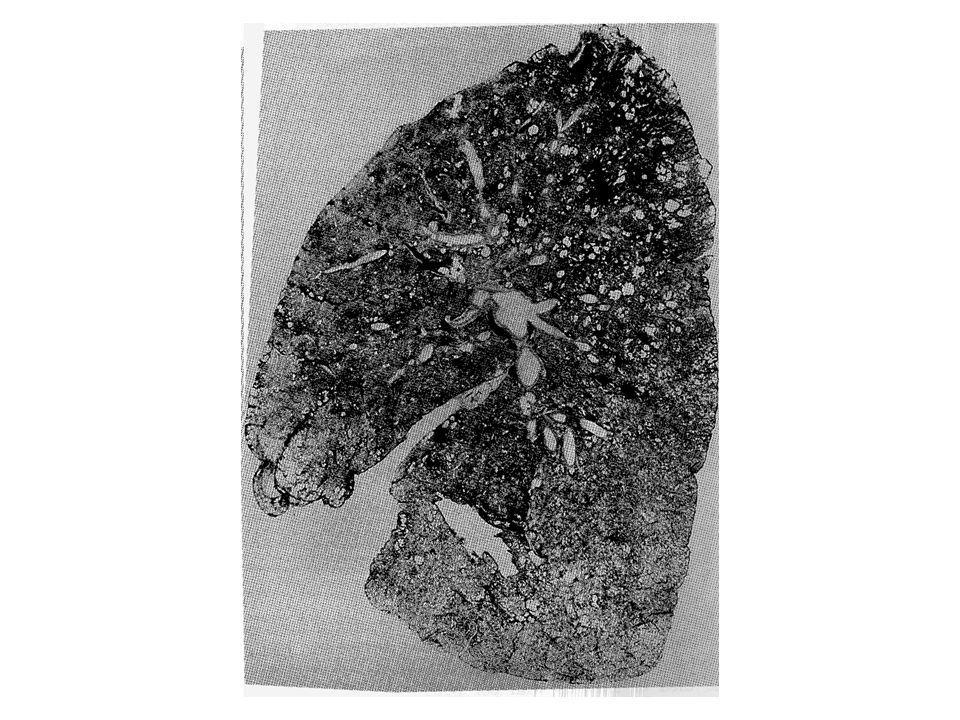 PNEUMOCONIOSI Fibrosi interstiziali nodulari: - silice (SiO 2 ) - polveri miste (carbone, fonderia, caolino, pomice) Fibrosi interstiziali diffuse: - asbesto - terra di Diatomee - talco Fibrosi da polveri inerti: - ferro - antimonio - (stagno, bario, alluminio, SiC) Granulomatosi: - berillio - metalli duri (Co, WC)