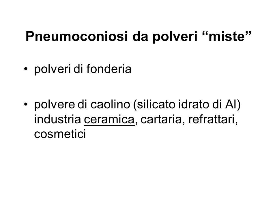 Pneumoconiosi da polveri miste polveri di fonderia polvere di caolino (silicato idrato di Al) industria ceramica, cartaria, refrattari, cosmetici