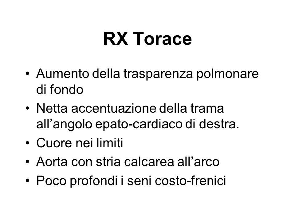 RX Torace Aumento della trasparenza polmonare di fondo Netta accentuazione della trama allangolo epato-cardiaco di destra. Cuore nei limiti Aorta con