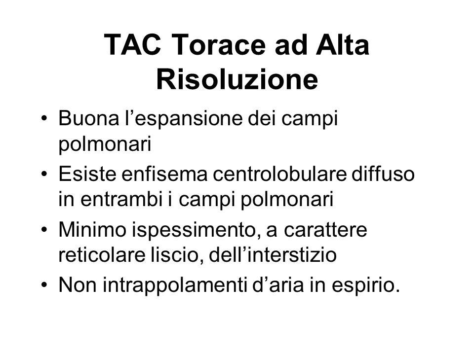 TAC Torace ad Alta Risoluzione Buona lespansione dei campi polmonari Esiste enfisema centrolobulare diffuso in entrambi i campi polmonari Minimo ispes