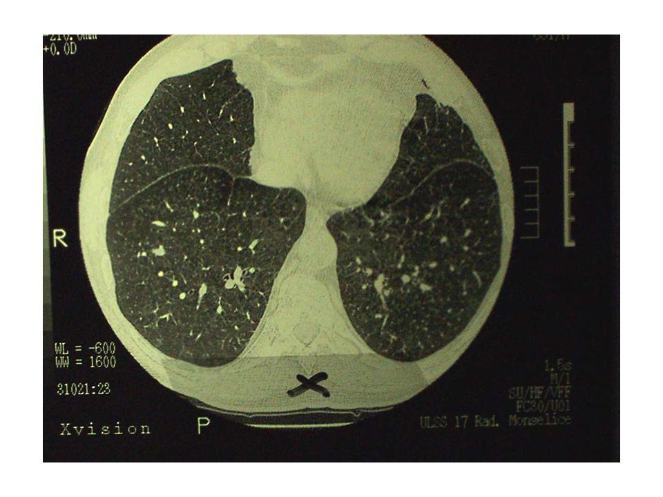 EPICRISI Presenza del fattore di rischio (fumi di saldatura) in anamnesi lavorativa Esposizione da ritenersi adeguata (circa 40 anni di lavoro) Presenza di malattia (BPCO confermata da esami strumentali) Assenza di altri fattori di rischio (fumo di sigaretta, altre rilevanti patologie pregresse)