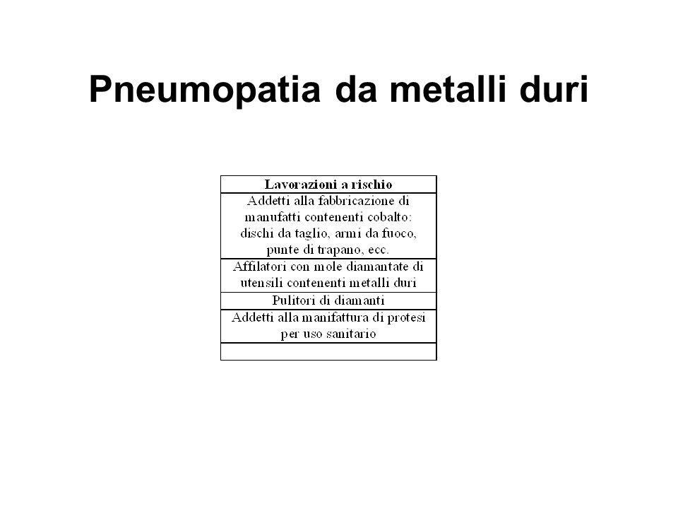 Pneumopatia da metalli duri (hard metal disease) alveolite acuta - subacuta - febbre, tosse, dispnea - Rx: opacità ground-glass - BAL: polmonite desquamativa, cellule multinuceate bizzarre fibrosi interstiziale - tosse, dispnea, perdita peso, clubbing - Rx: opacità reticolomicronodulari - fibrosi parete alveolare, peribronchiolare, perivascolare