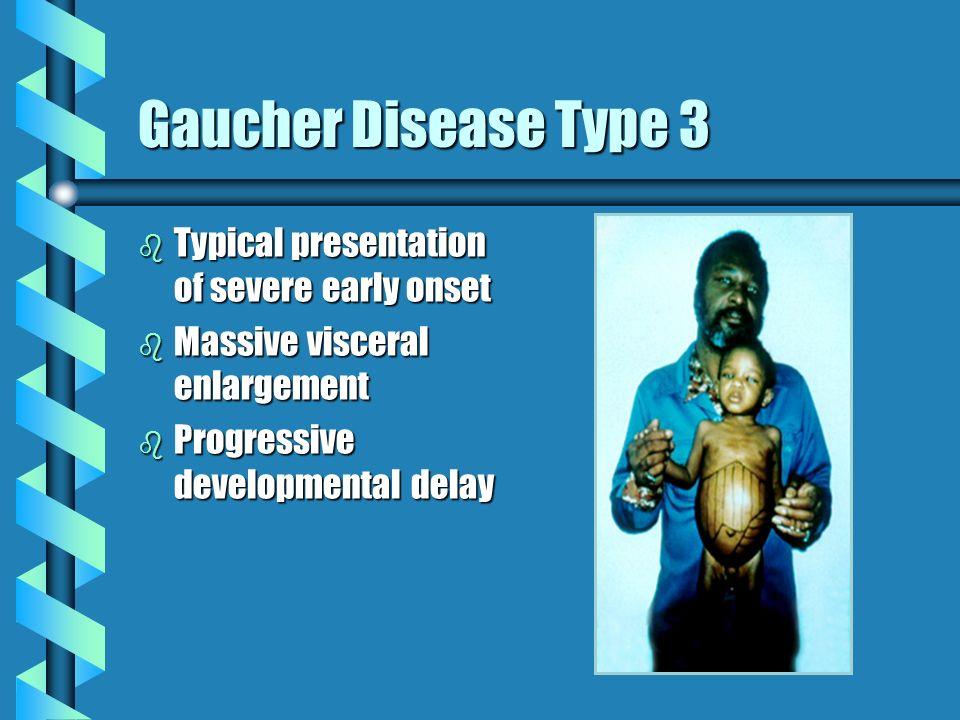 Gaucher Disease Type 3 b Typical presentation of severe early onset b Massive visceral enlargement b Progressive developmental delay