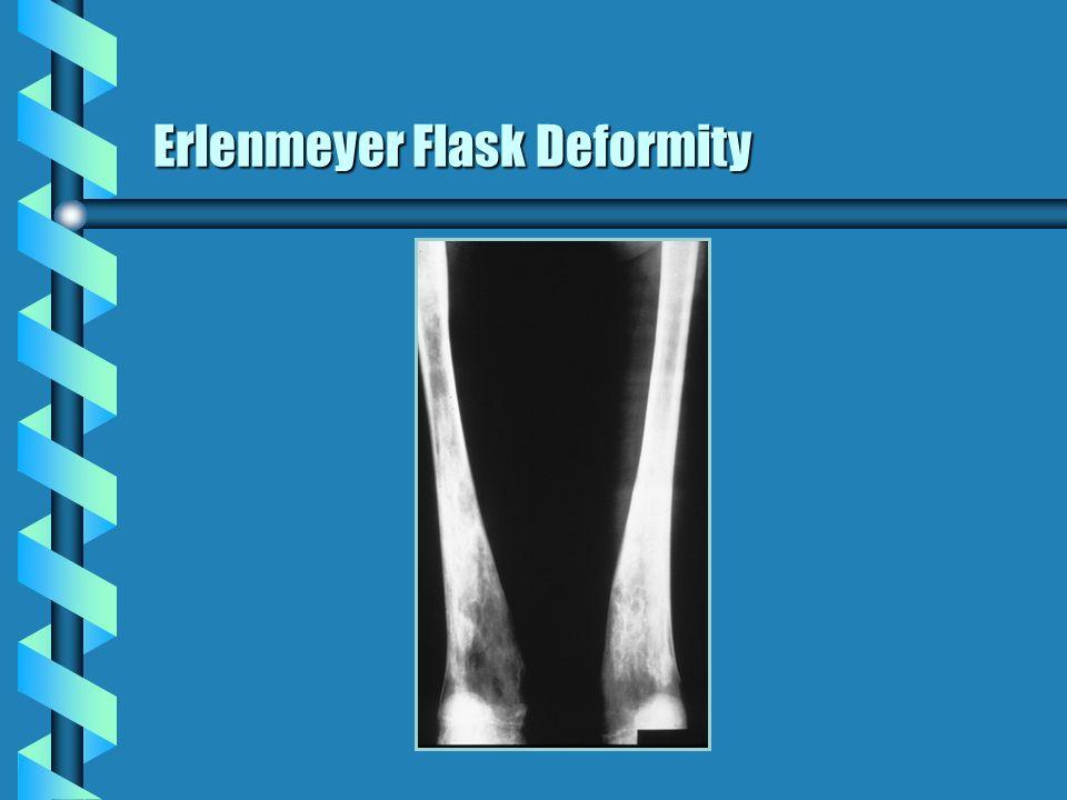 Erlenmeyer Flask Deformity