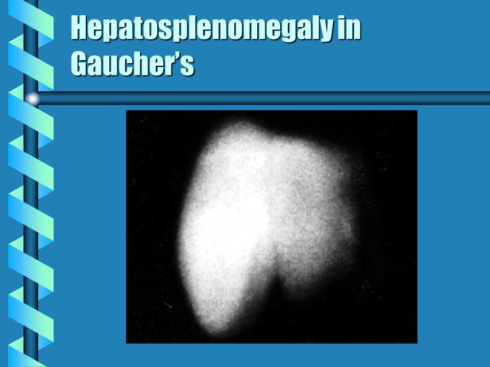 Hepatosplenomegaly in Gauchers
