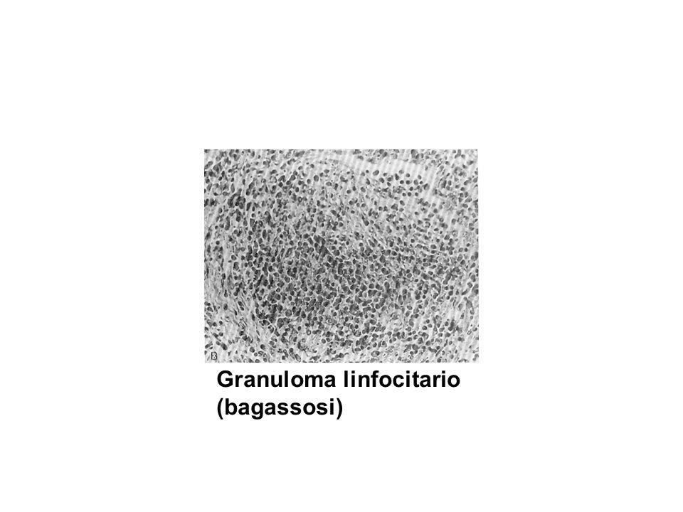 Granuloma linfocitario (bagassosi)