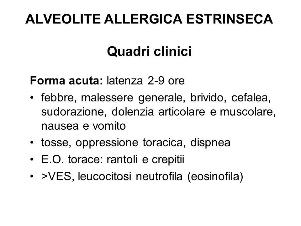 ALVEOLITE ALLERGICA ESTRINSECA Quadri clinici Forma acuta: latenza 2-9 ore febbre, malessere generale, brivido, cefalea, sudorazione, dolenzia articol