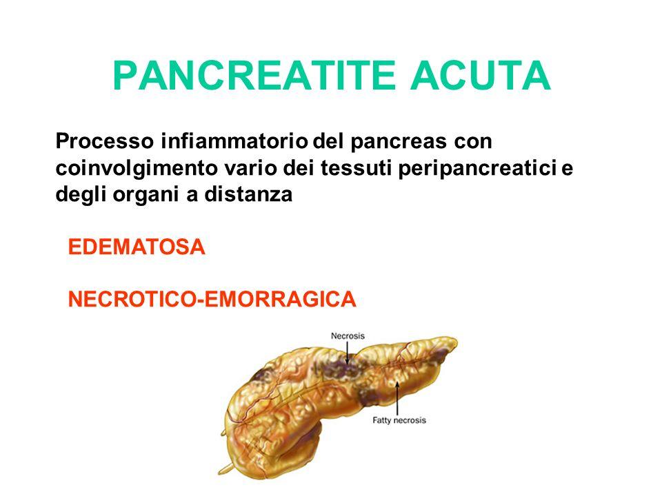 PANCREATITE ACUTA Processo infiammatorio del pancreas con coinvolgimento vario dei tessuti peripancreatici e degli organi a distanza EDEMATOSA NECROTI