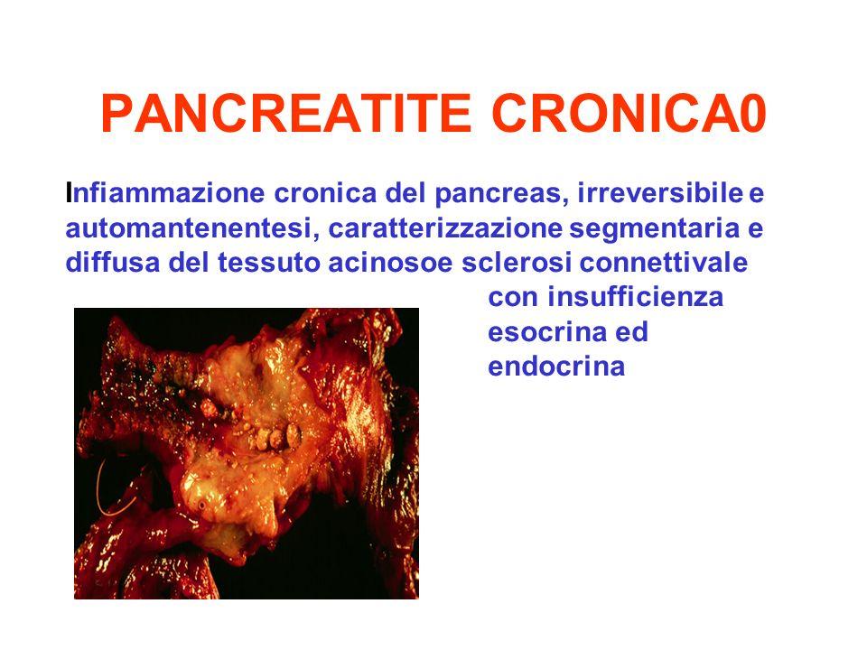 PANCREATITE CRONICA0 Infiammazione cronica del pancreas, irreversibile e automantenentesi, caratterizzazione segmentaria e diffusa del tessuto acinoso
