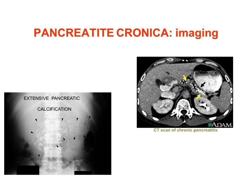 PANCREATITE CRONICA: imaging