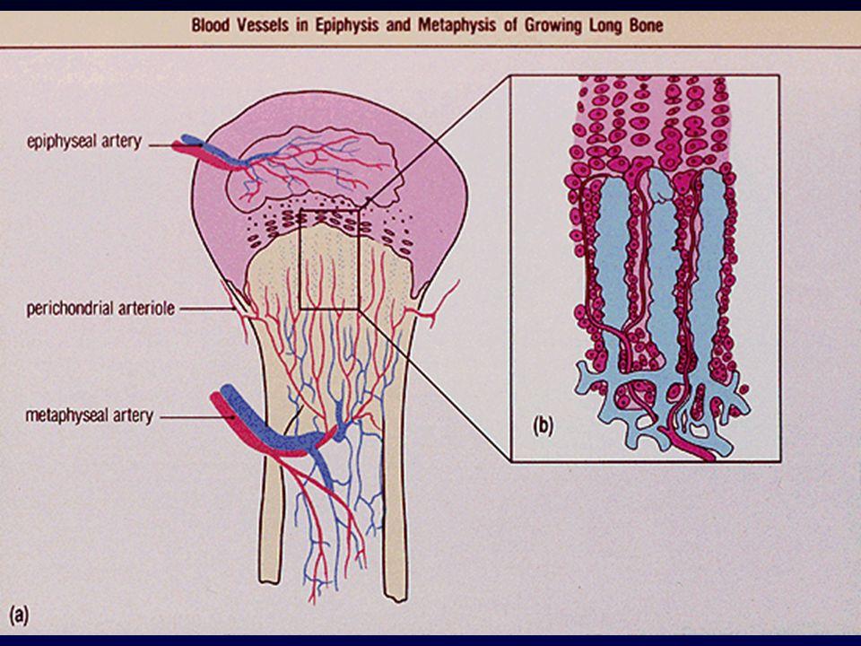 Forma ematogena Predilige le ossa lunghe (femore, tibia ed omero) e letà dello sviluppo (1-16 anni) I pazienti più anziani tendono a manifestare interessamento vertebrale