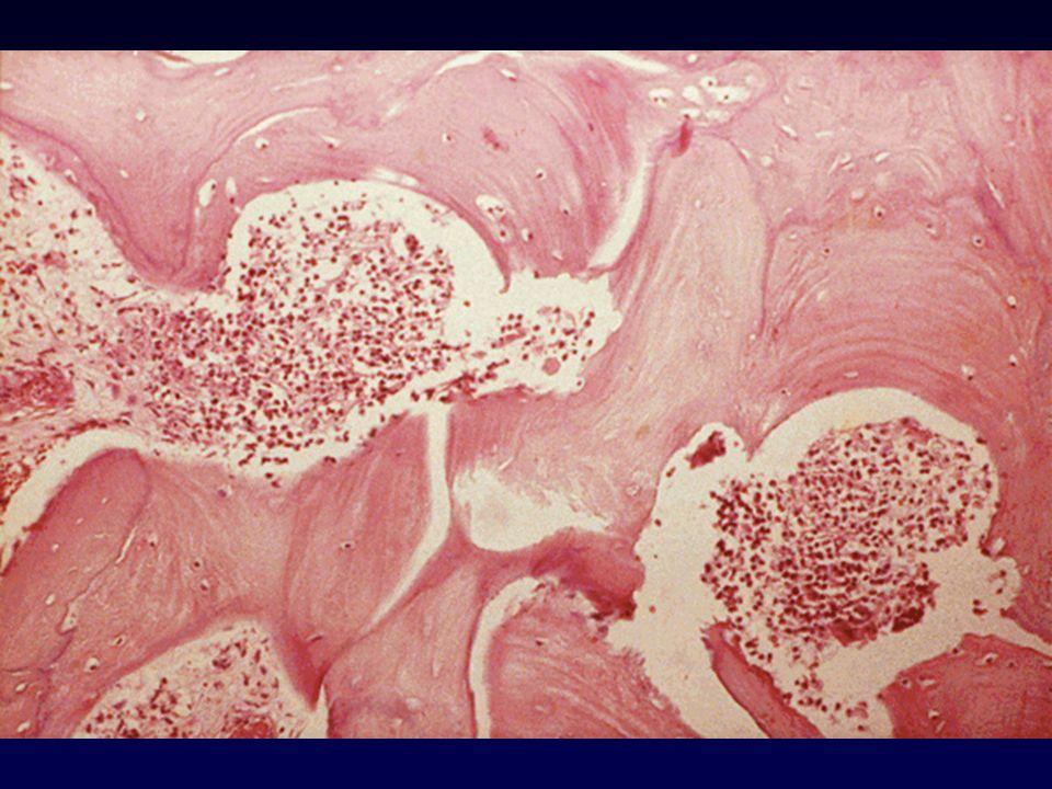 Aspirazione mediante ago E rivolta allaccertamento microbiologico Può costituire la risorsa diagnostica più necessaria quando lemocoltura è negativa Deve essere presa in seria considerazione –in caso di mancata risposta al trattamento iniziale entro 72 ore –quando si sospettino Gram-negativi Nellosteomielite vertebrale deve essere eseguita prima dellinizio della terapia antibatterica