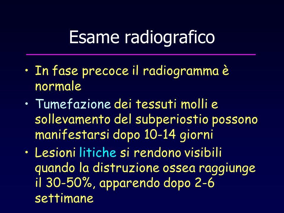 Esame radiografico In fase precoce il radiogramma è normale Tumefazione dei tessuti molli e sollevamento del subperiostio possono manifestarsi dopo 10