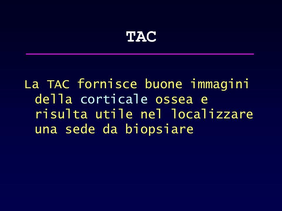 TAC La TAC fornisce buone immagini della corticale ossea e risulta utile nel localizzare una sede da biopsiare