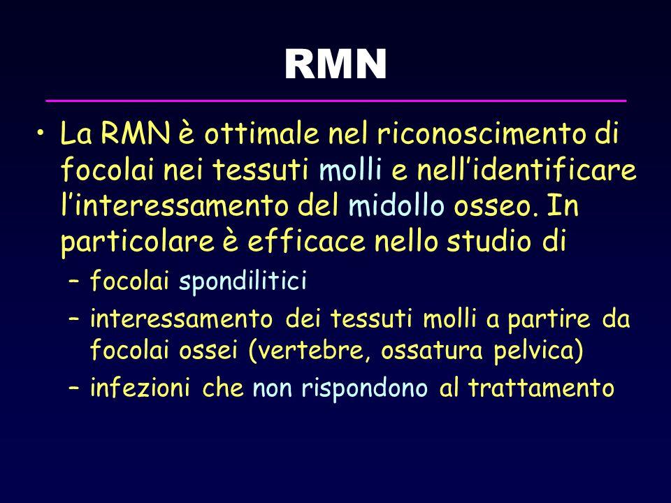 RMN La RMN è ottimale nel riconoscimento di focolai nei tessuti molli e nellidentificare linteressamento del midollo osseo. In particolare è efficace