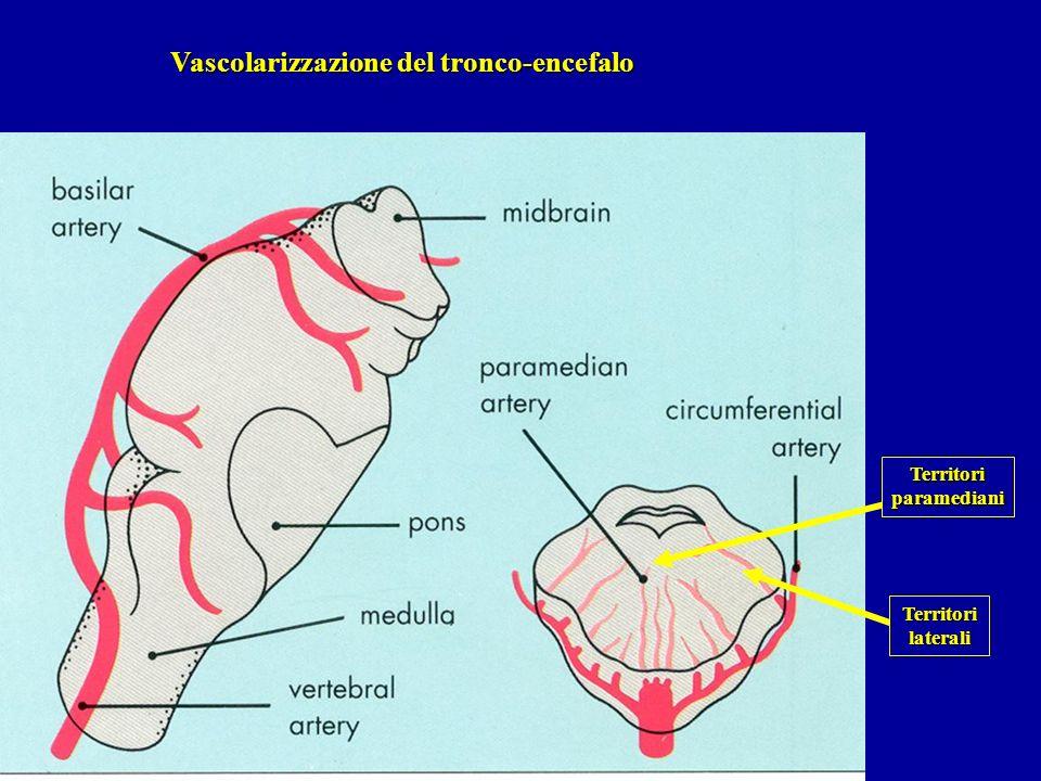 Vascolarizzazione del tronco-encefalo Territoriparamediani Territorilaterali