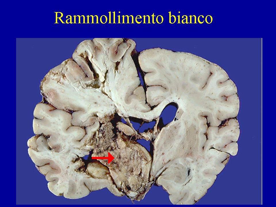 Spasmo arterioso da rottura di aneurisma Non è visibile la cerebrale anteriore di destra.
