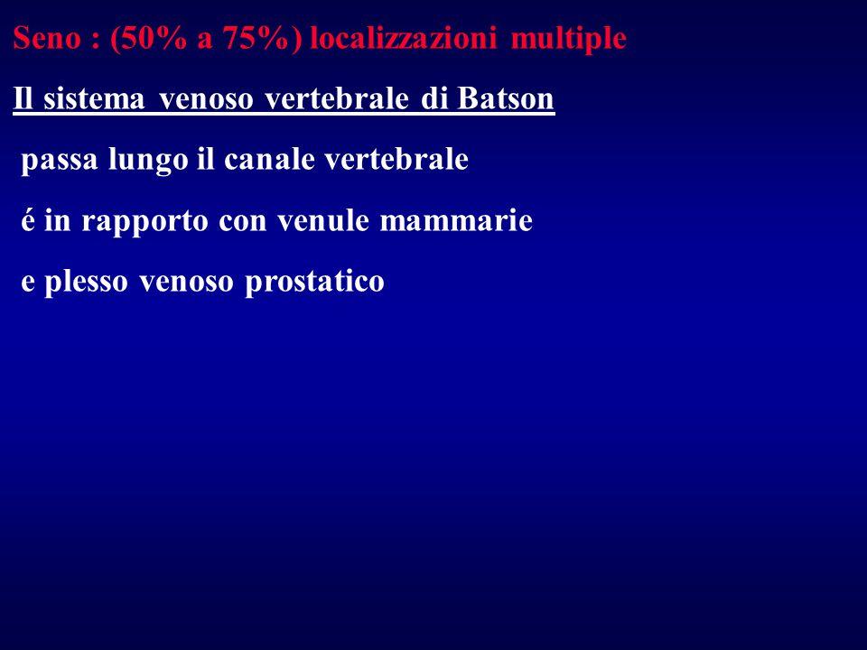 Seno : (50% a 75%) localizzazioni multiple Il sistema venoso vertebrale di Batson passa lungo il canale vertebrale é in rapporto con venule mammarie e