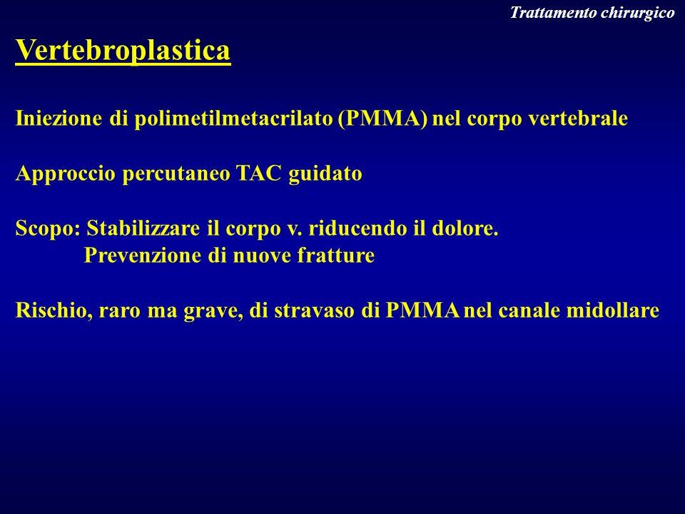 Trattamento chirurgico Vertebroplastica Iniezione di polimetilmetacrilato (PMMA) nel corpo vertebrale Approccio percutaneo TAC guidato Scopo: Stabiliz