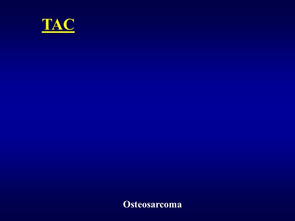 Osteosarcoma TAC