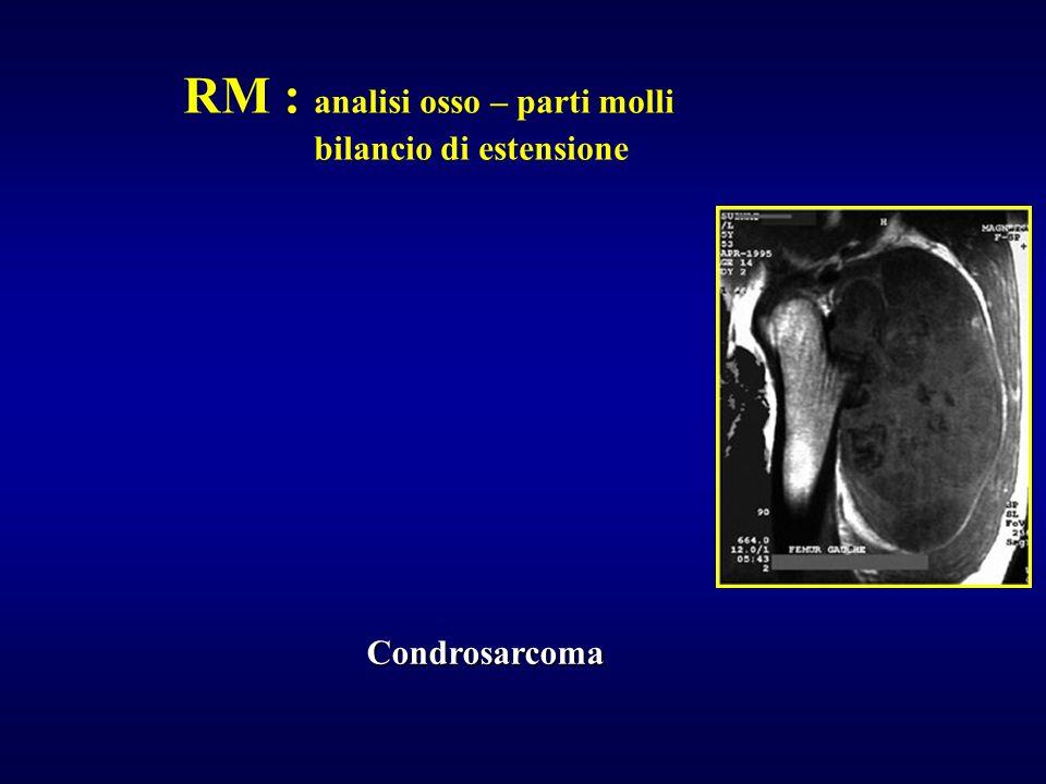 RM : analisi osso – parti molli bilancio di estensione Condrosarcoma
