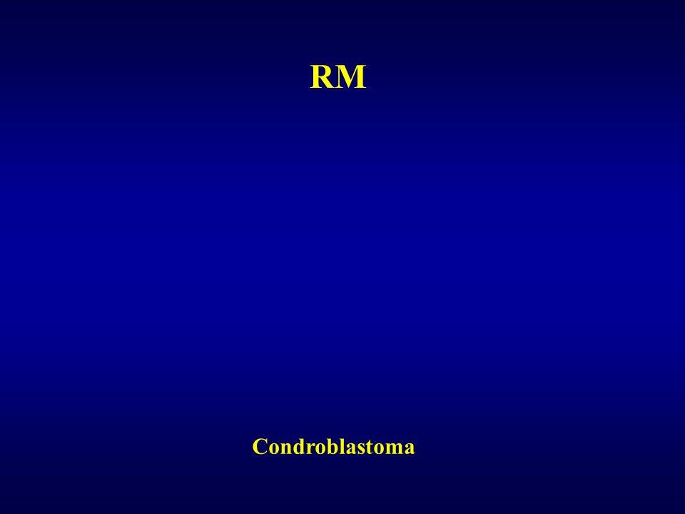 Condroblastoma RM