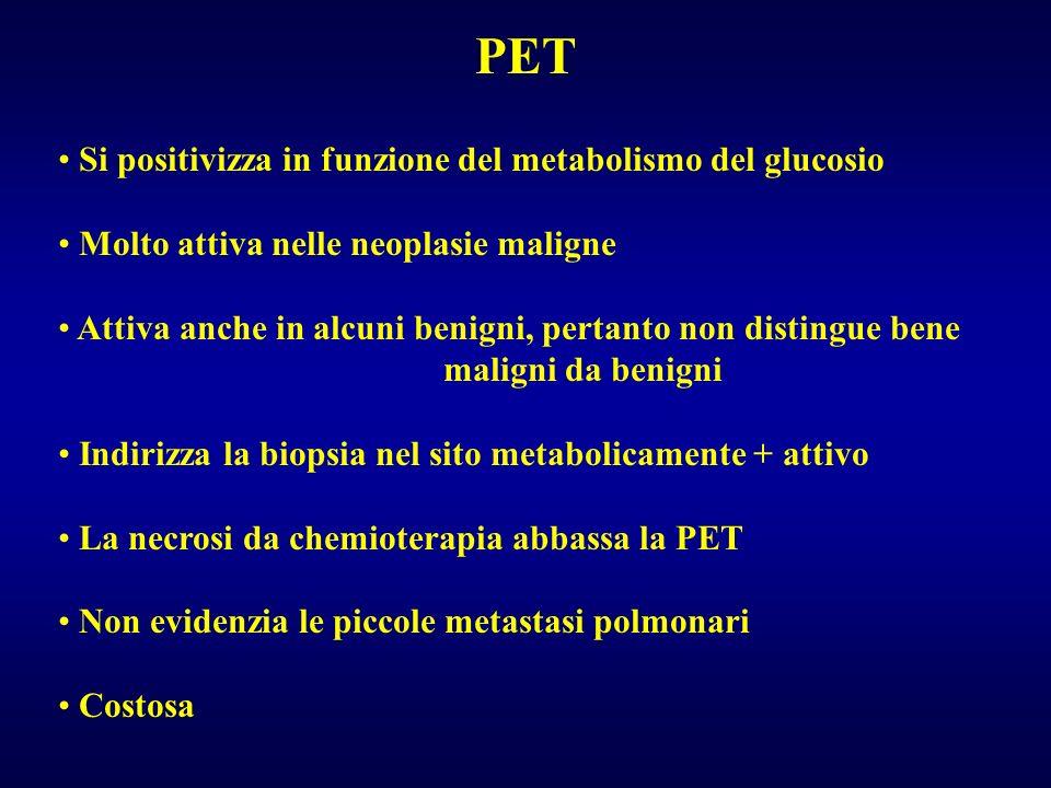 PET Si positivizza in funzione del metabolismo del glucosio Molto attiva nelle neoplasie maligne Attiva anche in alcuni benigni, pertanto non distingu
