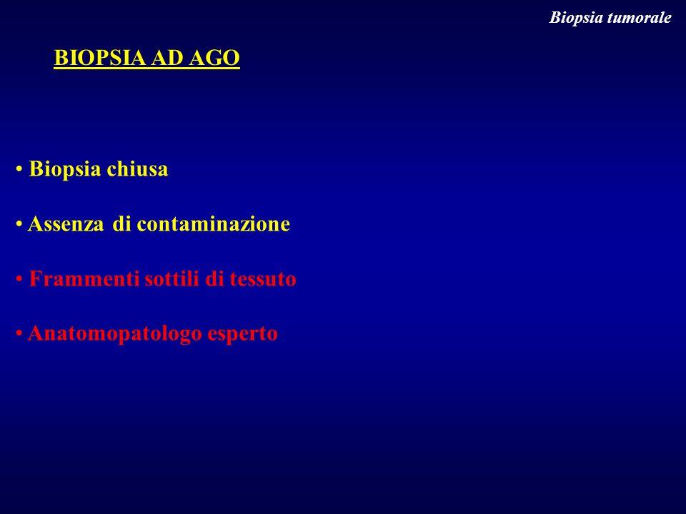 Biopsia tumorale BIOPSIA AD AGO Biopsia chiusa Assenza di contaminazione Frammenti sottili di tessuto Anatomopatologo esperto