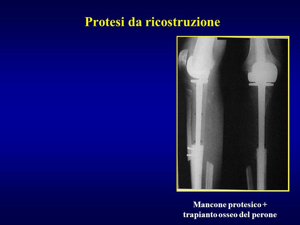 Protesi da ricostruzione Mancone protesico + trapianto osseo del perone