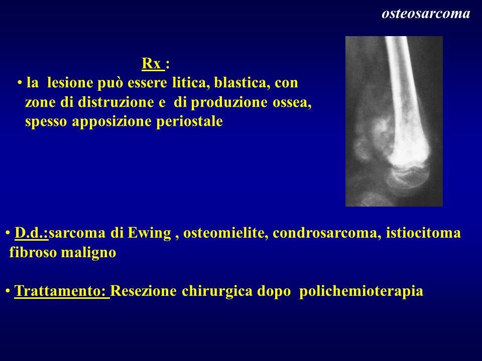 D.d.:sarcoma di Ewing, osteomielite, condrosarcoma, istiocitoma fibroso maligno Trattamento: Resezione chirurgica dopo polichemioterapia osteosarcoma