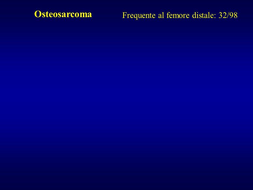 Osteosarcoma Frequente al femore distale: 32/98