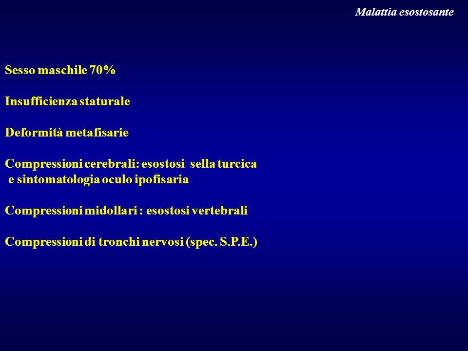 Malattia esostosante Sesso maschile 70% Insufficienza staturale Deformità metafisarie Compressioni cerebrali: esostosi sella turcica e sintomatologia