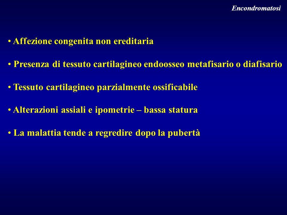 Encondromatosi Affezione congenita non ereditaria Presenza di tessuto cartilagineo endoosseo metafisario o diafisario Tessuto cartilagineo parzialment