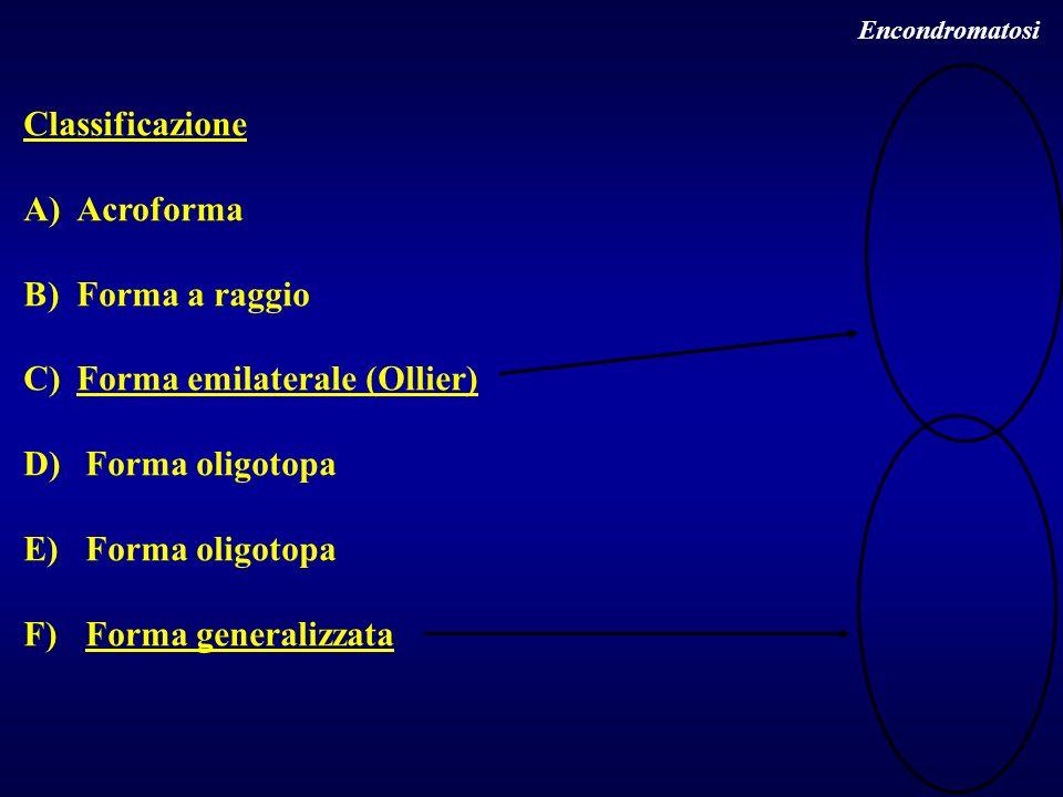 Encondromatosi Classificazione A)Acroforma B)Forma a raggio C)Forma emilaterale (Ollier) D) Forma oligotopa E) Forma oligotopa F) Forma generalizzata