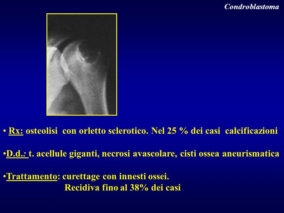 Condroblastoma Rx: osteolisi con orletto sclerotico. Nel 25 % dei casi calcificazioni D.d.: t. acellule giganti, necrosi avascolare, cisti ossea aneur