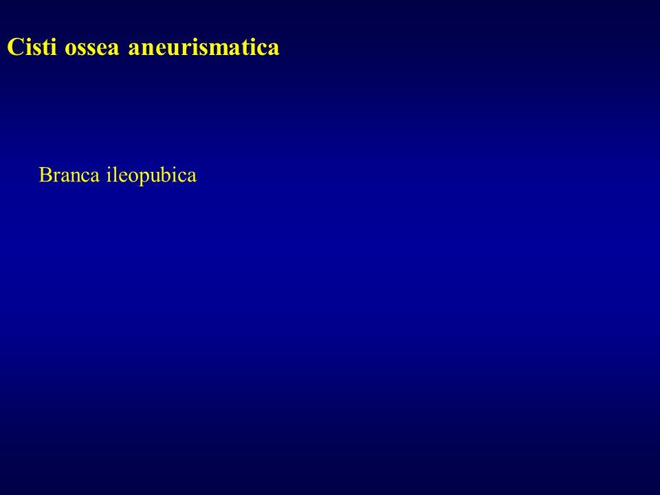 Cisti ossea aneurismatica Branca ileopubica