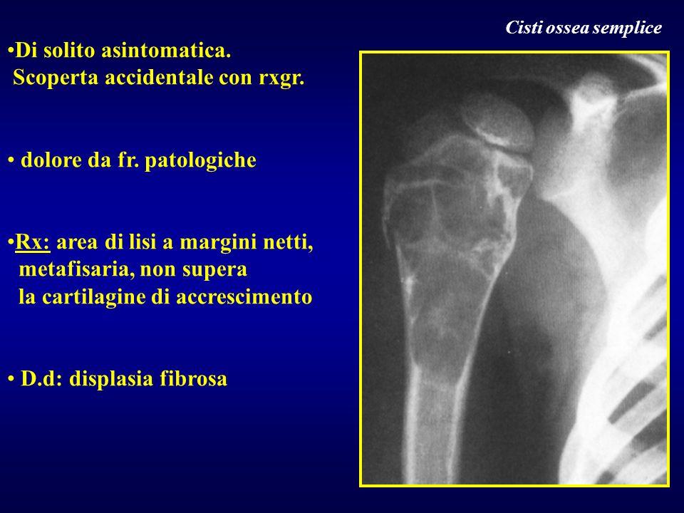 Di solito asintomatica. Scoperta accidentale con rxgr. dolore da fr. patologiche Rx: area di lisi a margini netti, metafisaria, non supera la cartilag