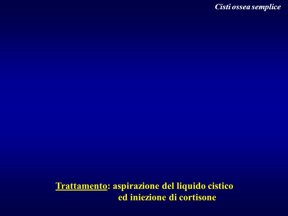 Cisti ossea semplice Trattamento: aspirazione del liquido cistico ed iniezione di cortisone