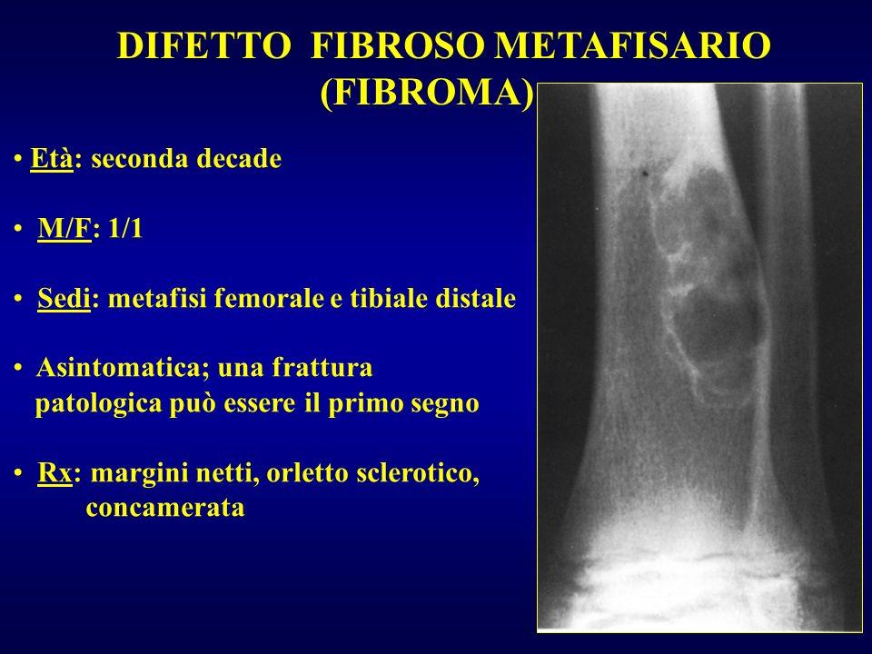 DIFETTO FIBROSO METAFISARIO (FIBROMA) Età: seconda decade M/F: 1/1 Sedi: metafisi femorale e tibiale distale Asintomatica; una frattura patologica può