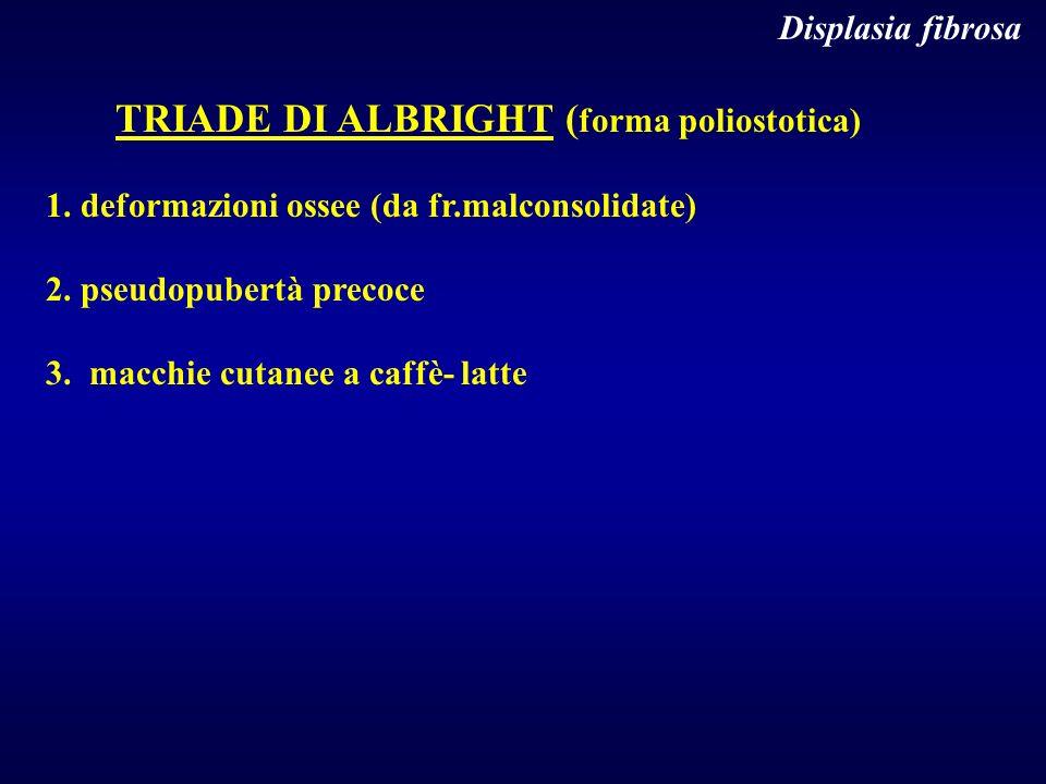 Displasia fibrosa TRIADE DI ALBRIGHT ( forma poliostotica) 1. deformazioni ossee (da fr.malconsolidate) 2. pseudopubertà precoce 3. macchie cutanee a