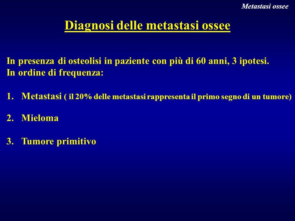 Diagnosi delle metastasi ossee In presenza di osteolisi in paziente con più di 60 anni, 3 ipotesi. In ordine di frequenza: 1.Metastasi ( il 20% delle