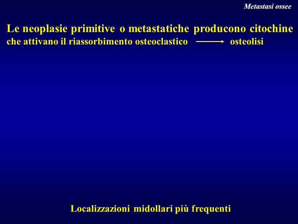 Le neoplasie primitive o metastatiche producono citochine che attivano il riassorbimento osteoclastico osteolisi Localizzazioni midollari più frequent