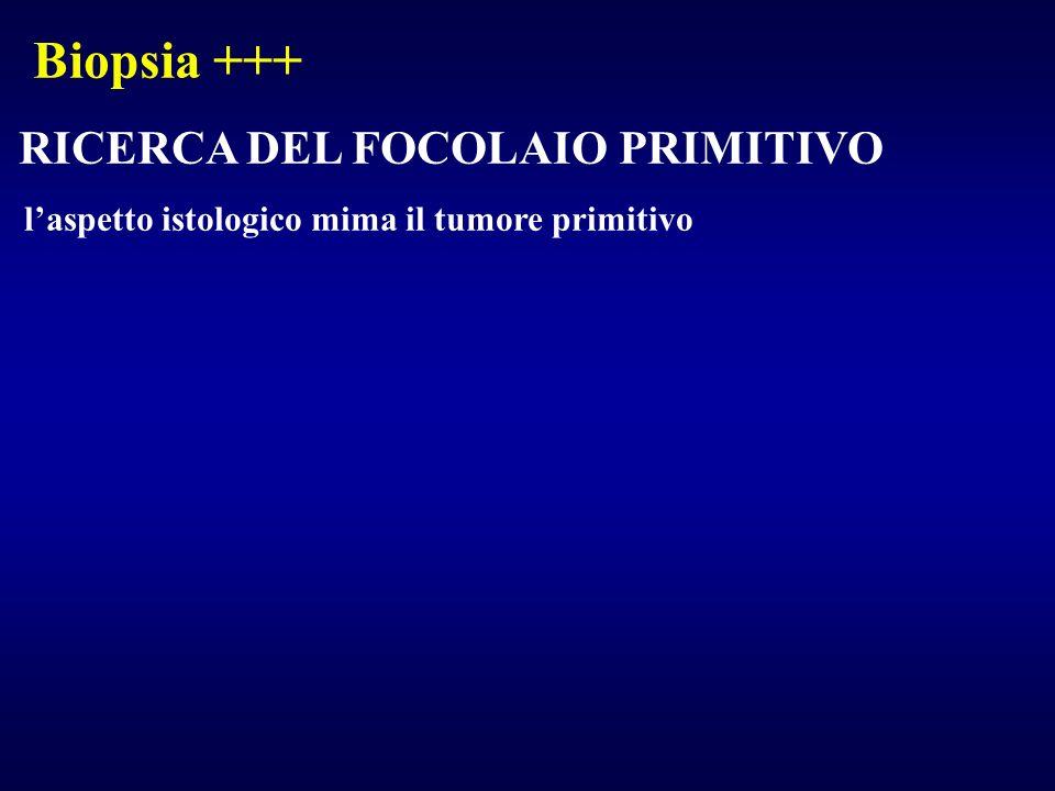 Biopsia +++ RICERCA DEL FOCOLAIO PRIMITIVO laspetto istologico mima il tumore primitivo