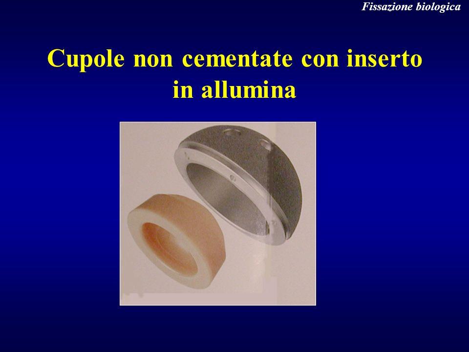 Cupole non cementate con inserto in allumina Fissazione biologica