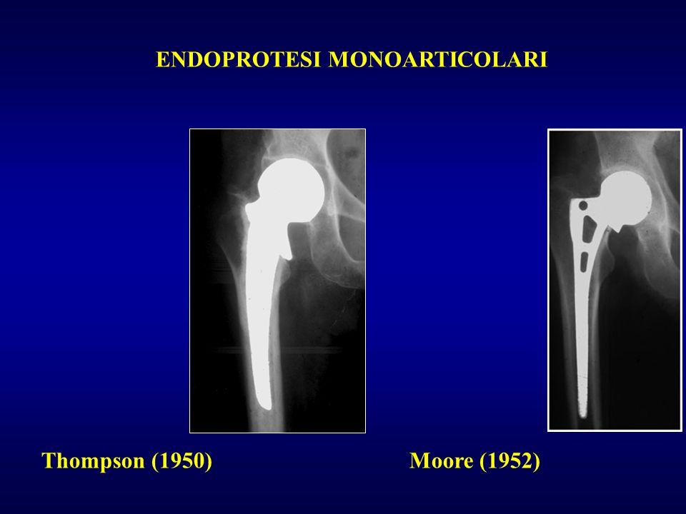Thompson (1950) Moore (1952) ENDOPROTESI MONOARTICOLARI