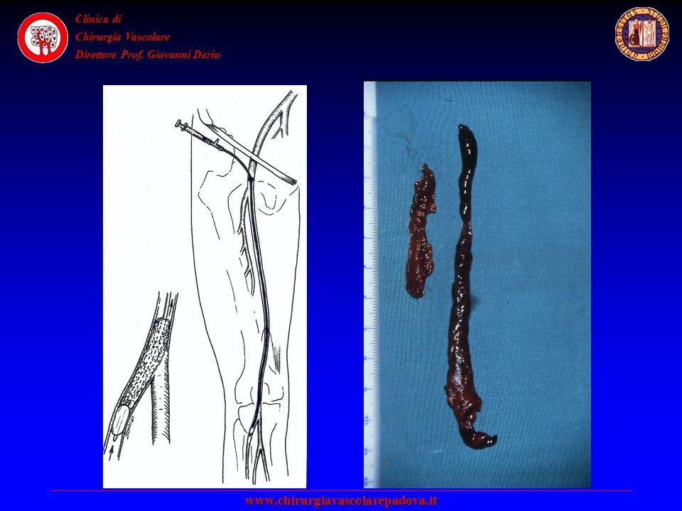 Clinica di Chirurgia Vascolare Direttore Prof. Giovanni Deriu www.chirurgiavascolarepadova.it
