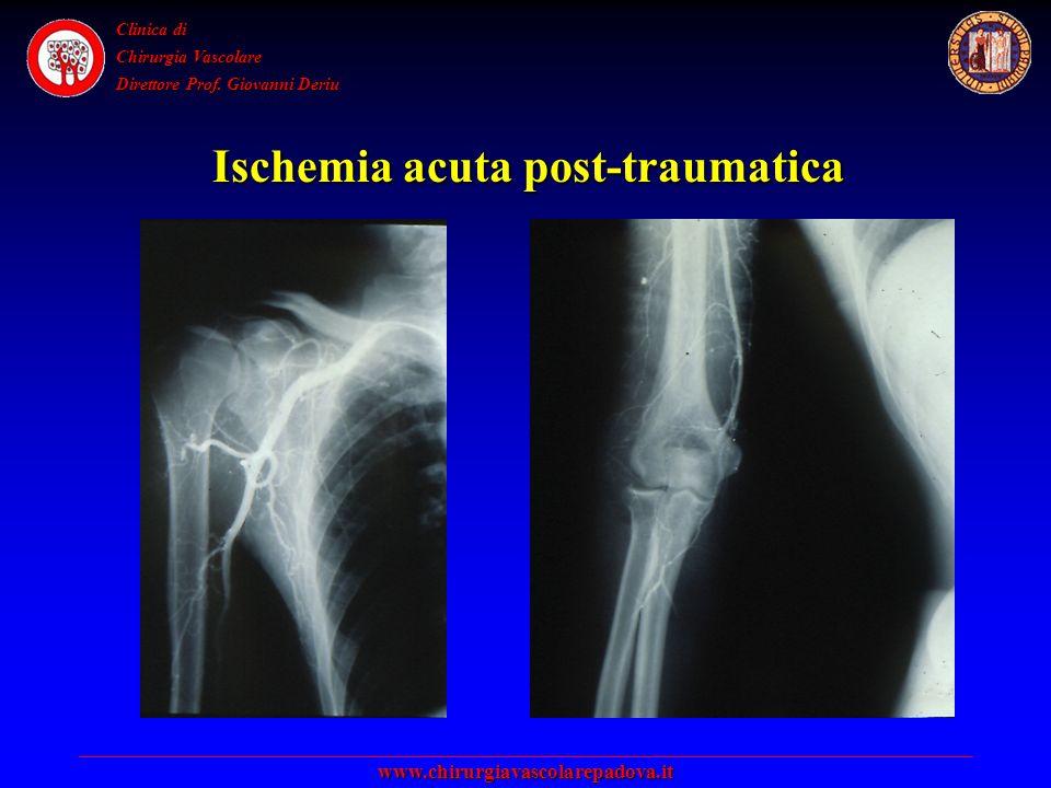 Clinica di Chirurgia Vascolare Direttore Prof.